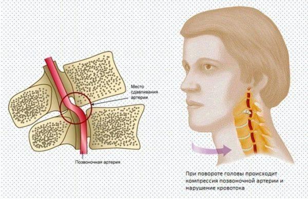 Как убрать головокружение при остеохондрозе шейного отдела