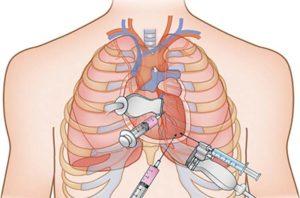 Гипертрофия левого желудочка - признаки и причины, лечение кардиомиопатии