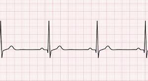 Замедление сердечного ритма