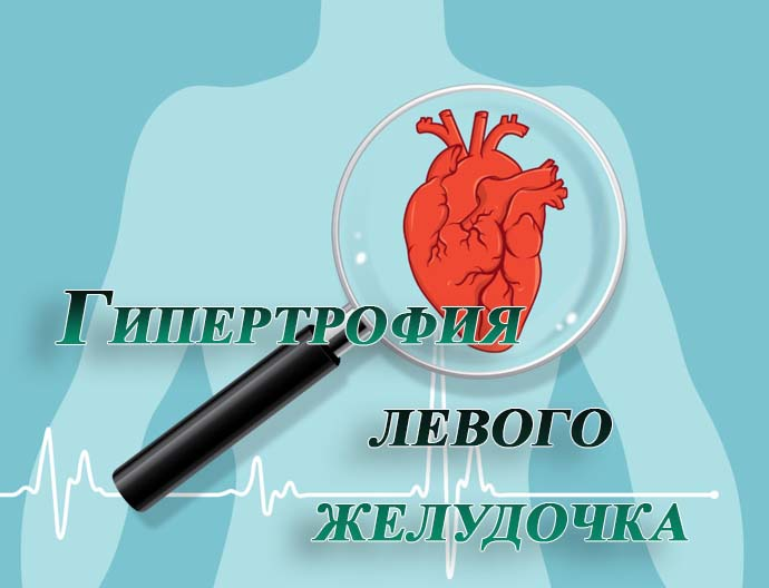 Гипертрофия левого желудочка при беременности