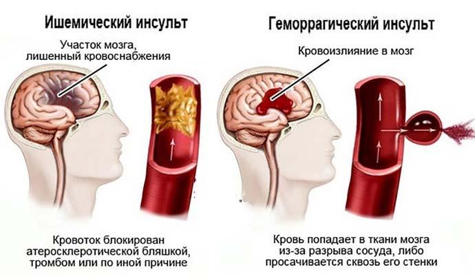 Инсульт и артериальное давление thumbnail