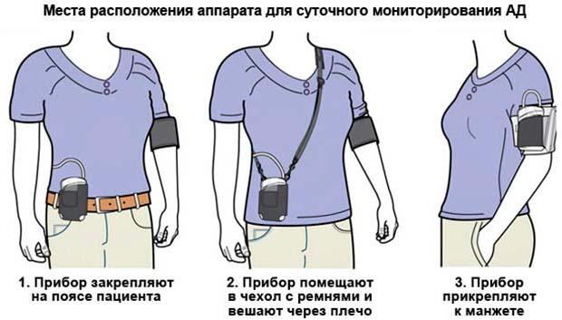 Изображение - Мониторинг артериального давления me_monitor