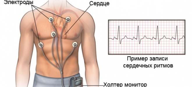 Изображение - Мониторинг артериального давления monitorirovaniya